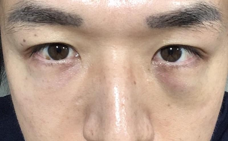 眉間 ヒアルロン 酸 眉間のシワの原因とヒアルロン酸・ボトックス注射による予防・改善に...