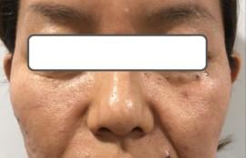 ヒアルロン酸症例写真